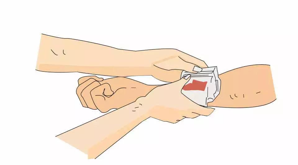 如图所示,加压包扎止血法可用于治疗伤员哪个部位出血?